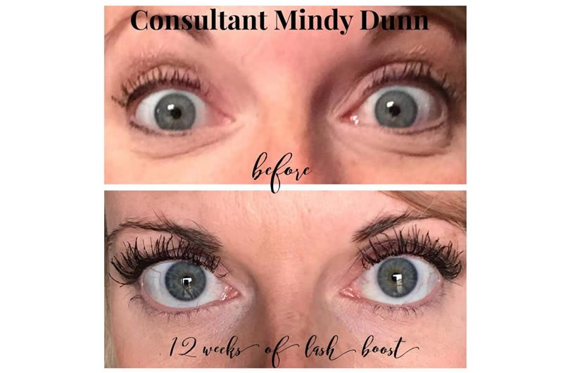 Rodan And Fields Lash Serum Before And After