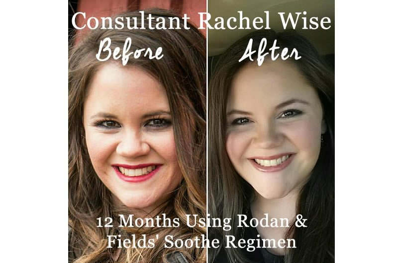 Rodan And Fields Soothe Regimen Before And After